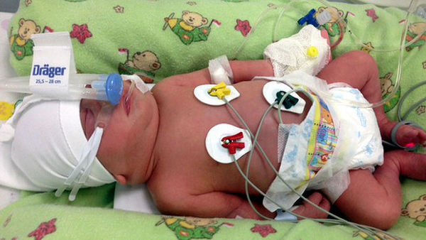 Baby Cooper in intensive care