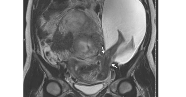 uterine-rupture-amniocele