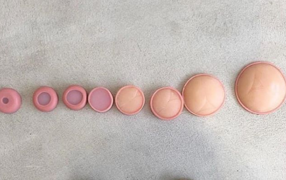 Like a doughnut? Midwife shares amazing photo of woman\'s cervix
