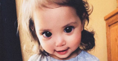 "Little girl's ""beautiful"" eyes are actually caused by a rare genetic condition"