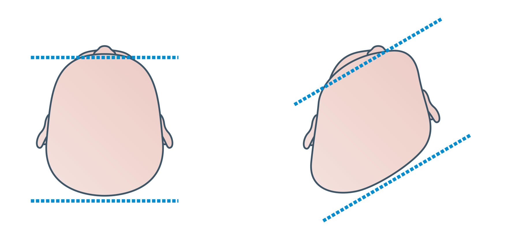 Plagiocephaly by The Royal Children's Hospital